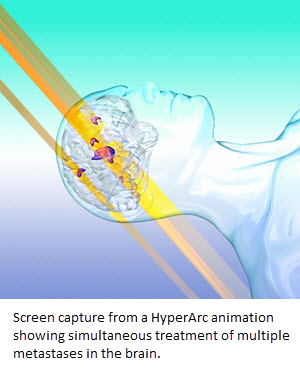 Screen capture from a HyperArc animation showing simultaneous treatment of multiple metastases in the brain